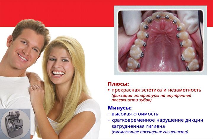 Лингвальная брекет-система