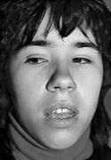 Прокладывание языка между зубами 1