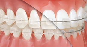 Эстетическое покрытие ортодонтической дуги
