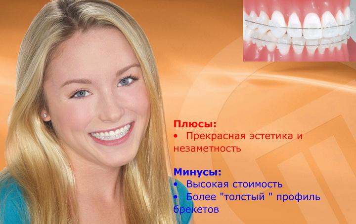 Керамическая брекет-система
